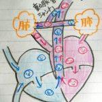 心室中隔欠損を伴った肺動脈閉鎖と、極型ファロー四徴症の違い